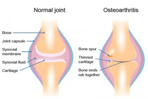 EXERCISING WITH OSTEOARTHRITIS, IT DOESN'T ALWAYS HAVE TO BE PAINFUL