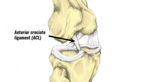 FORCE ABSORPTION: THE KEY TO ACL PREVENTION??